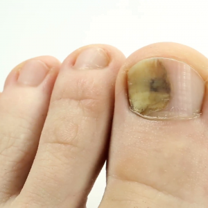fungus and bunions