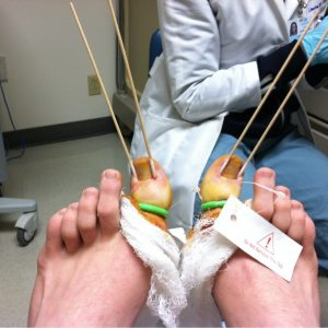 ingrown-toenail-surgery